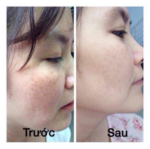 Trước và sau khi trị nám bằng máy trị nám CuRAS