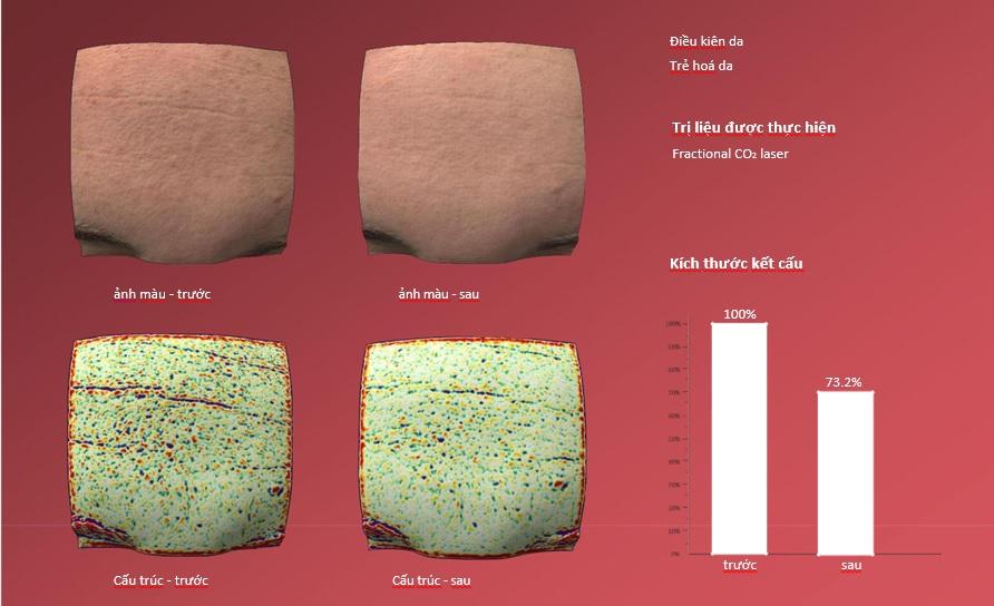 hình ảnh phân tích da