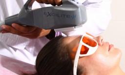 EXCILITE-µ Công nghệ trị vảy nến, bạch biến hàng đầu thế giới - phần 2