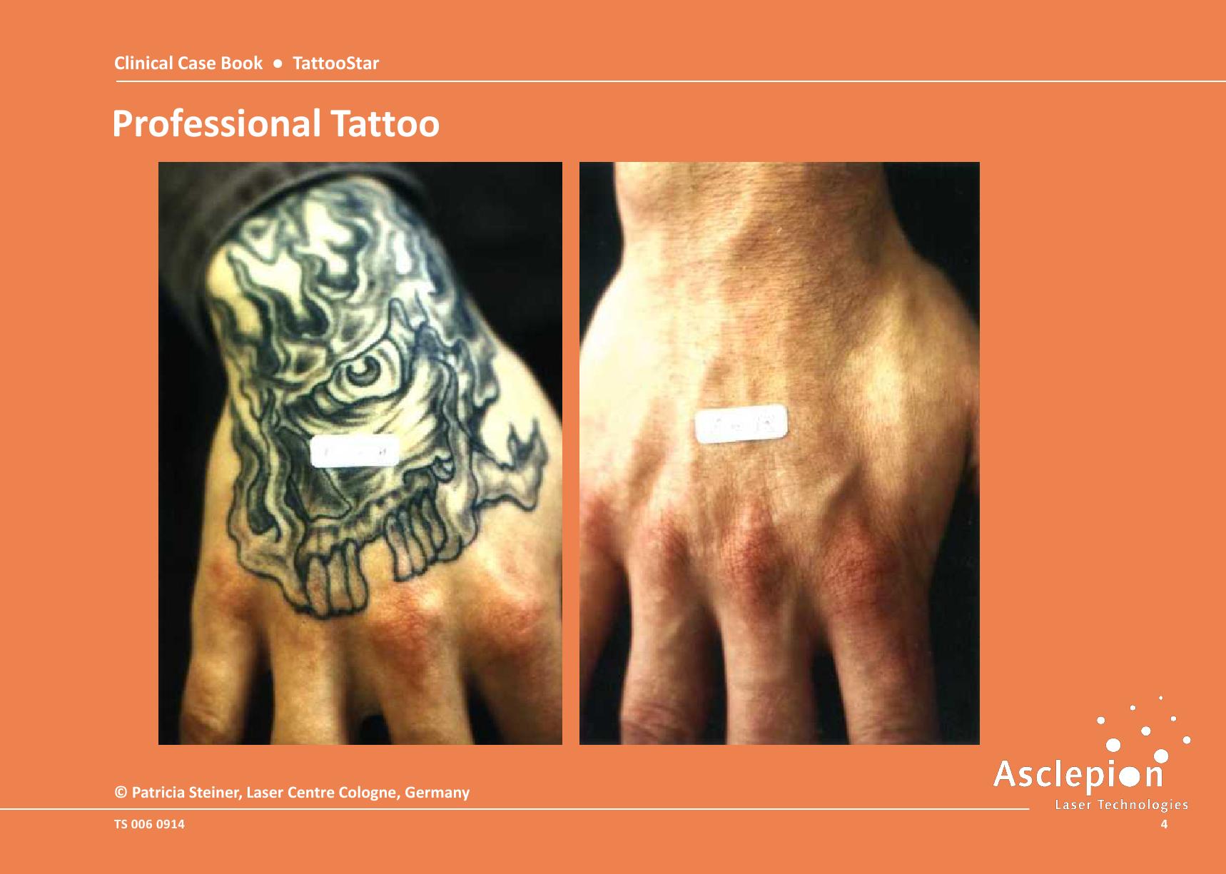 máy tri nám xung vuông tattoostar