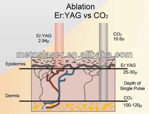 Er YAG va CO2