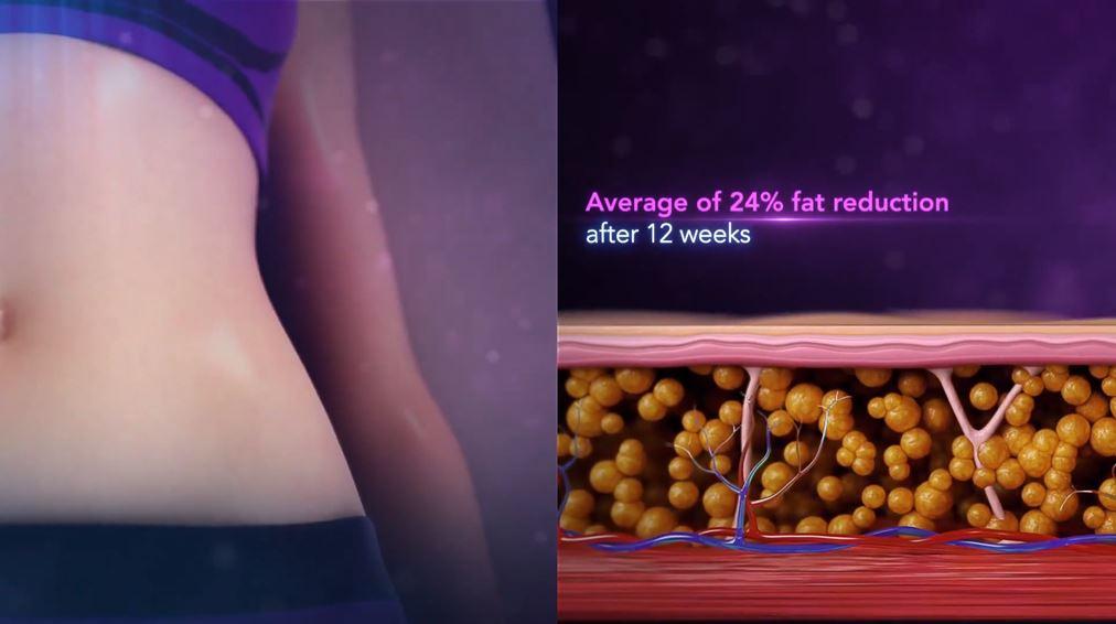 Công nghệ giảm béo RF đơn cực - TruSculpt